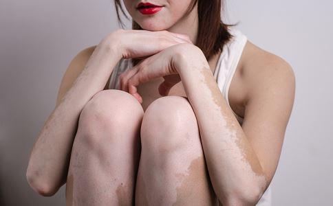 白癜风可能会给孕妇带来哪些伤害